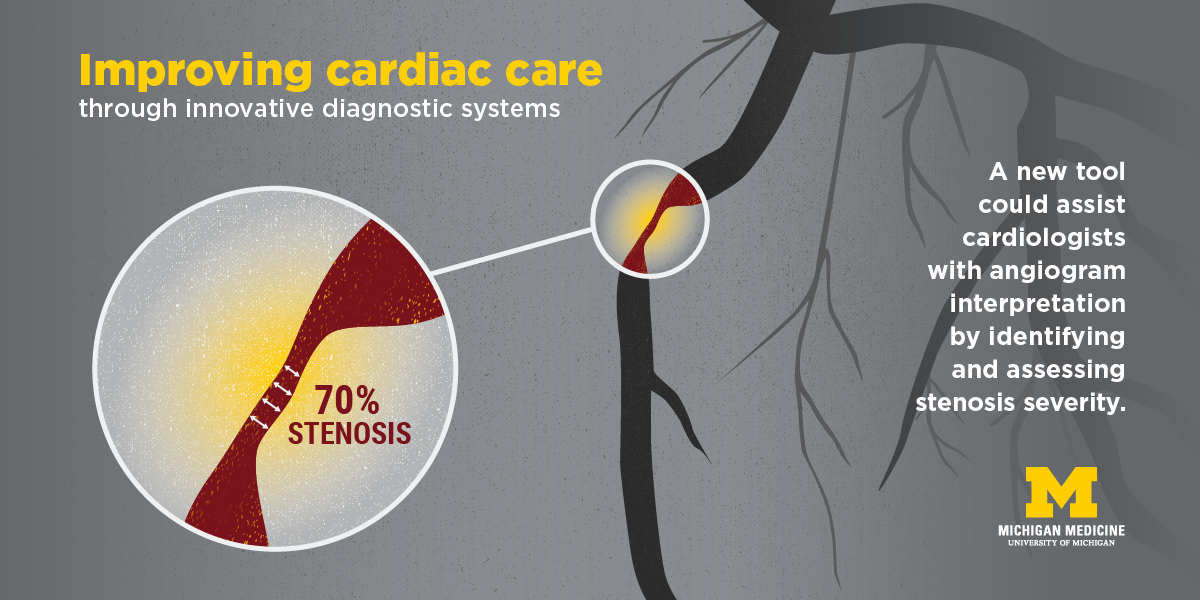 A new tool could assist cardiologists with angiogram interpretation.